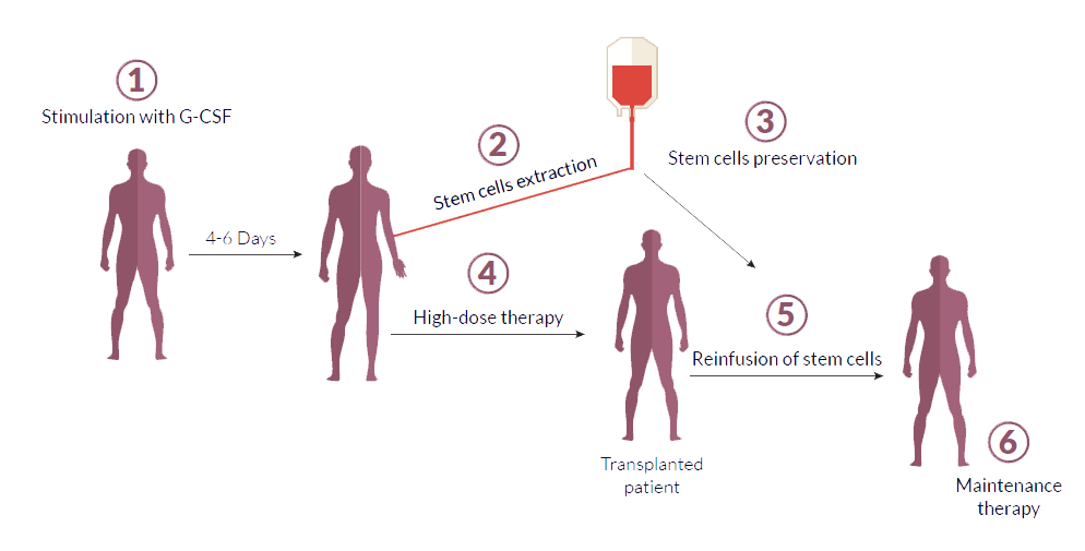 stem cell transplantation